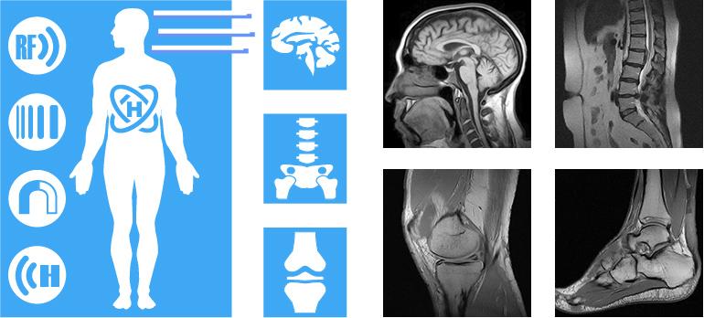 Информация об МРТ в центрах Аз